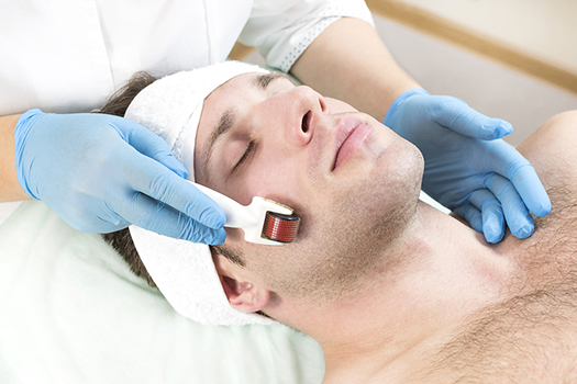 Micro-Needling - Collagen Induction Therapy